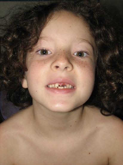 Toothless Erin